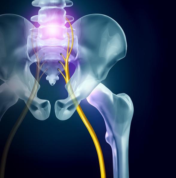 Sciatica | Pain on Sciatic Nerve
