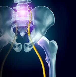 Sciatica | Pain on Sciatic Nerve