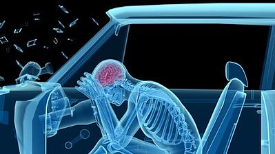 Head Injury After a Car Accident