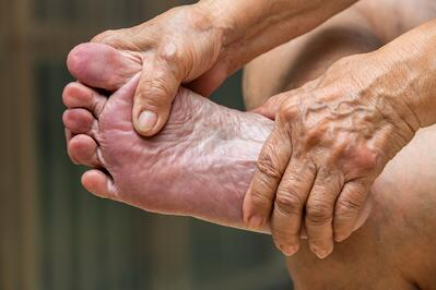 Florida Senior seeks Neuropathy Treatment for foot pain