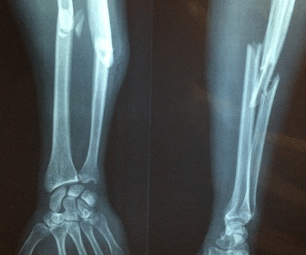 Broken bone slip and fall accident