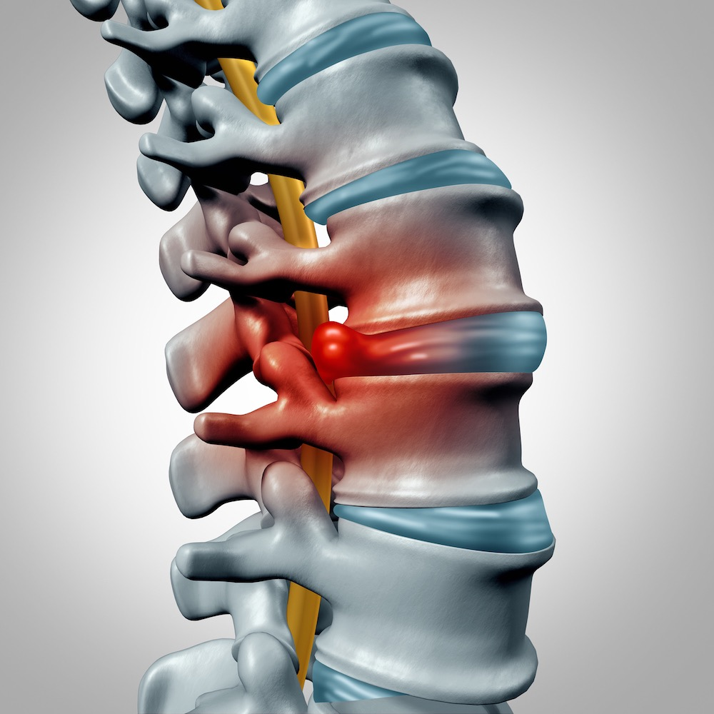 Chiropractic Care for Bulging Discs